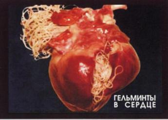 черви внутри организма